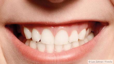 Bruksismi: hampaiden narskuttelu kuluttaa hampaita